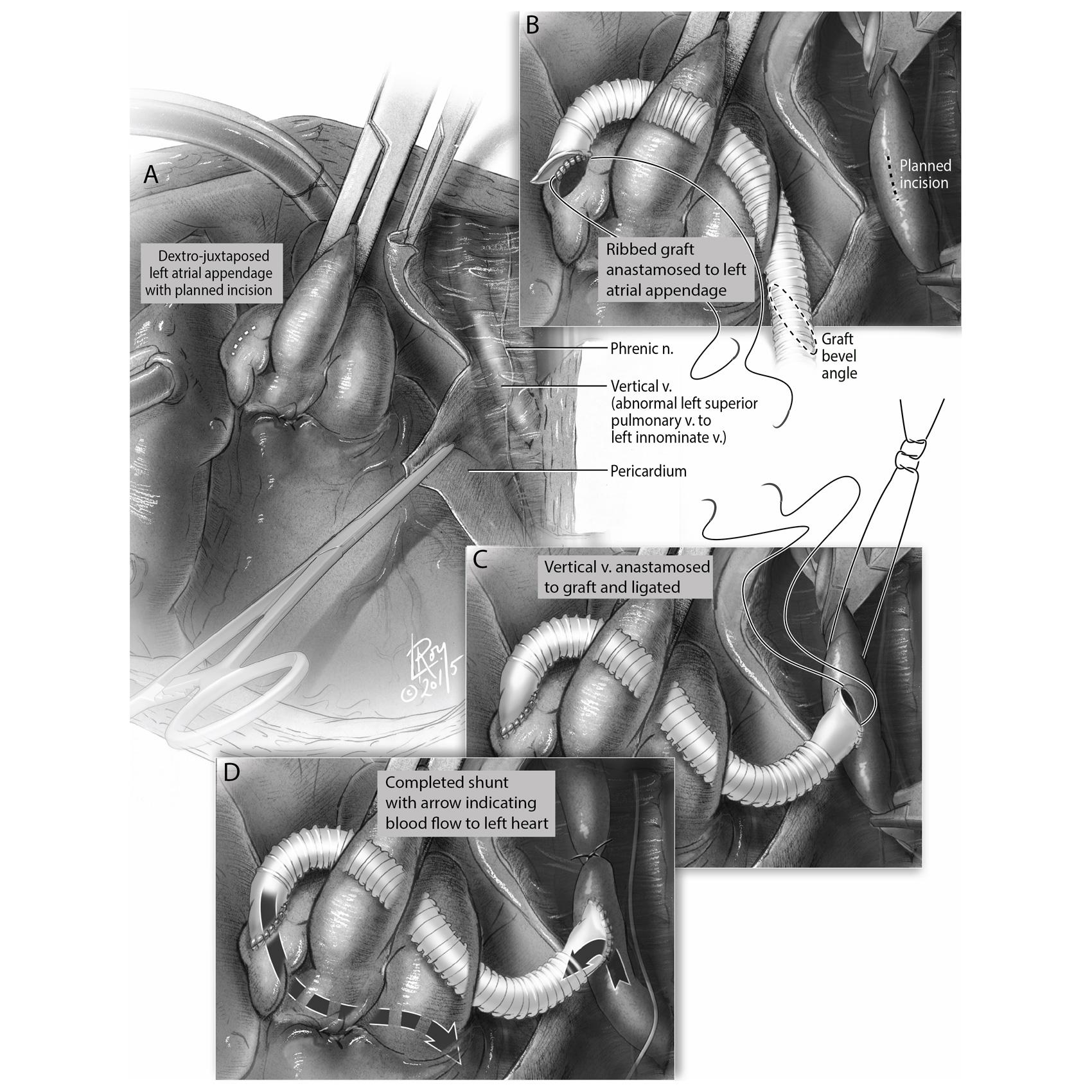 Cardiac Illustration