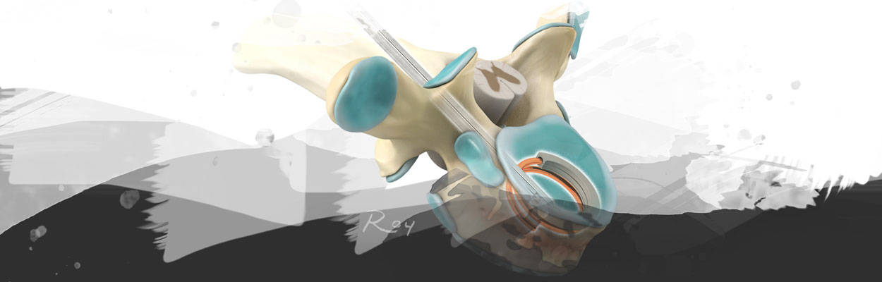 3D Services Vertebral Augmentation